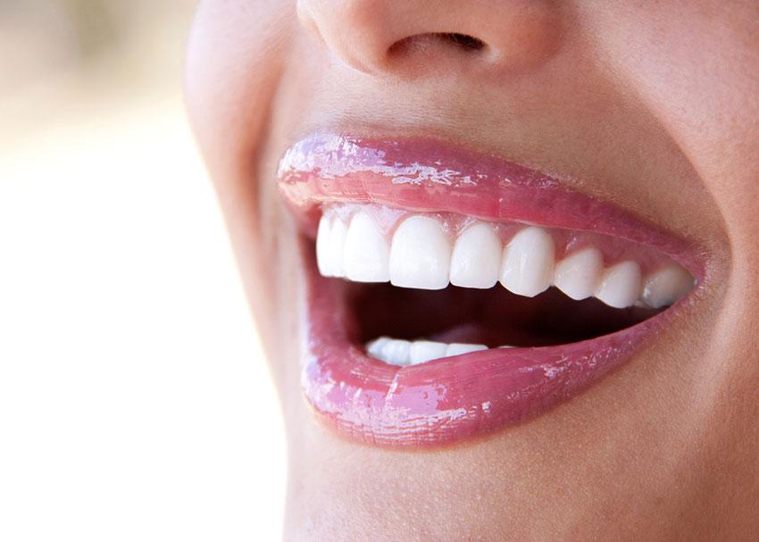 Le regole per denti bianchi e sani