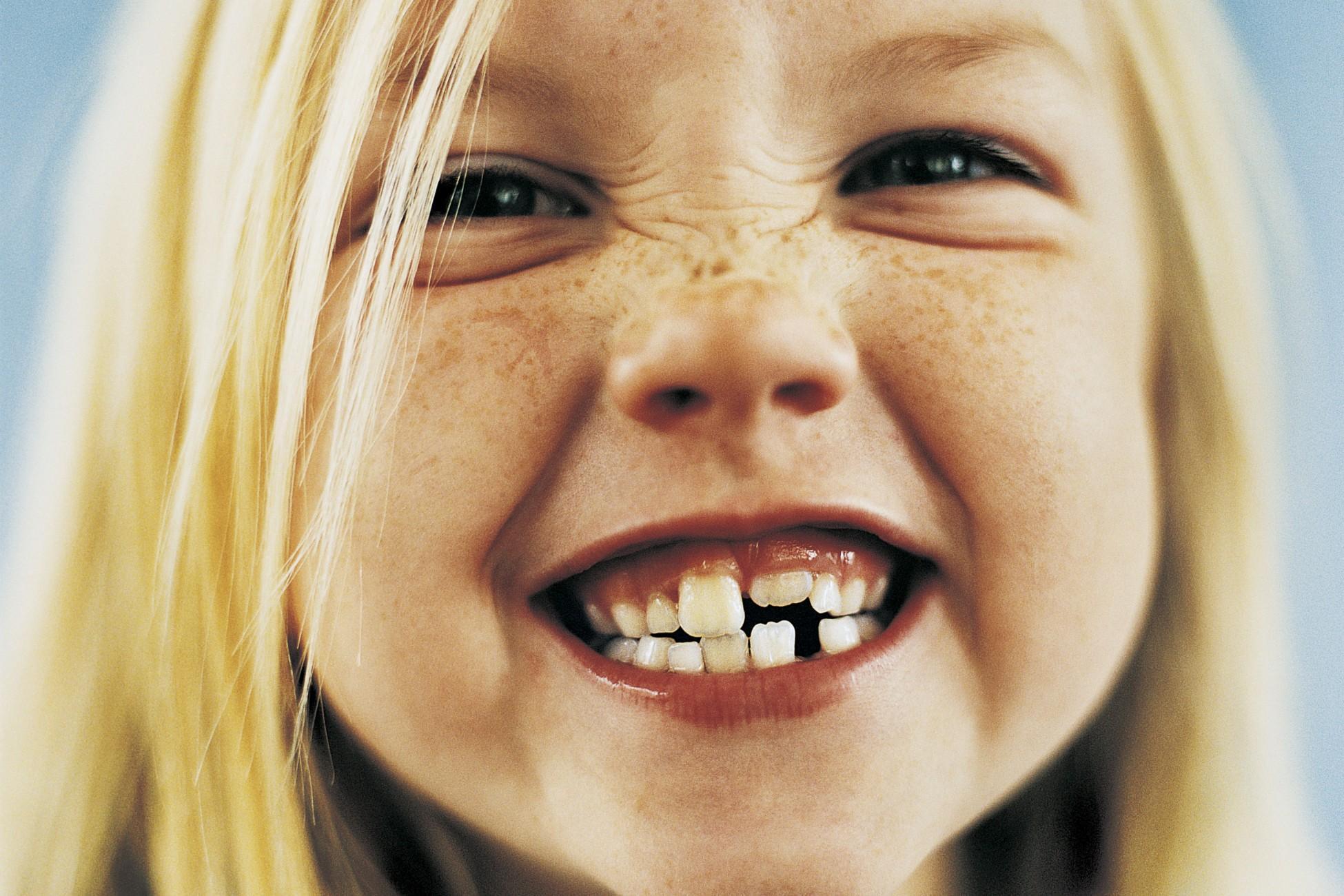 I bambini: i denti decidui o denti da latte