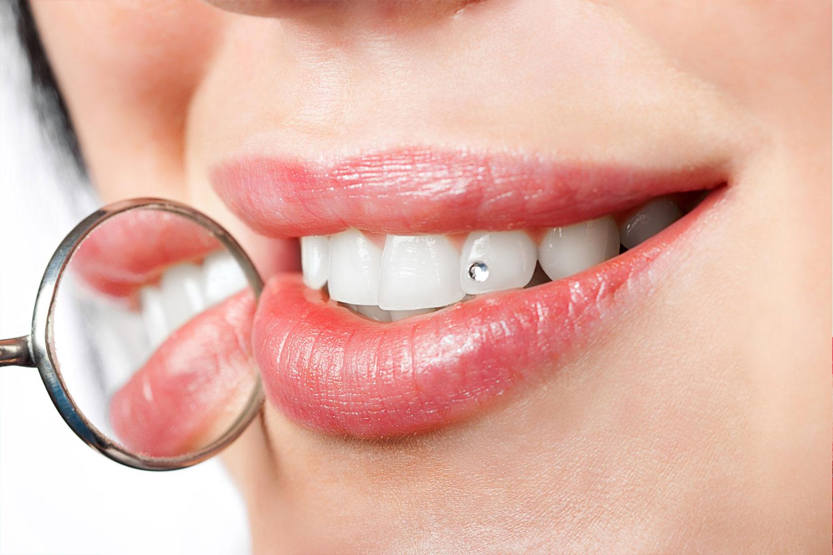 Il brillantino al dente é sempre di moda, ma i rischi?