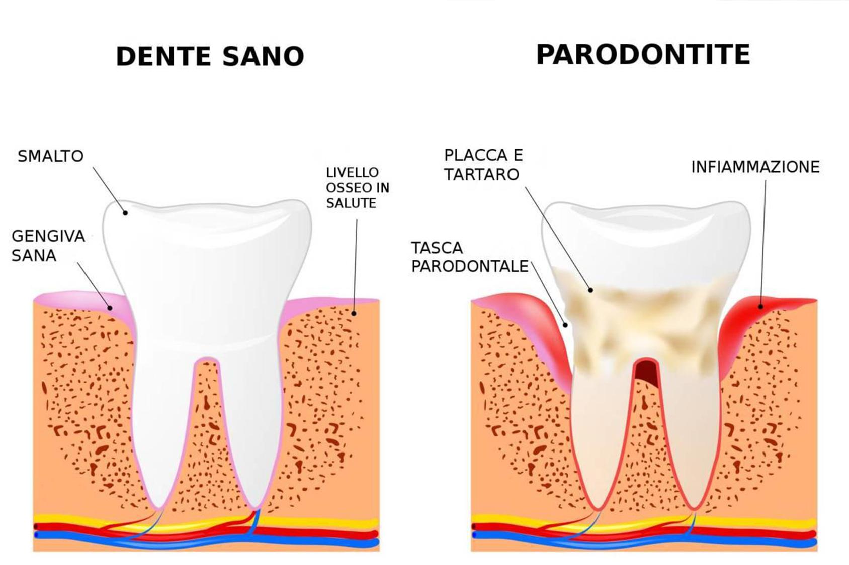 Bastano 6 denti per mettere a rischio la salute della bocca