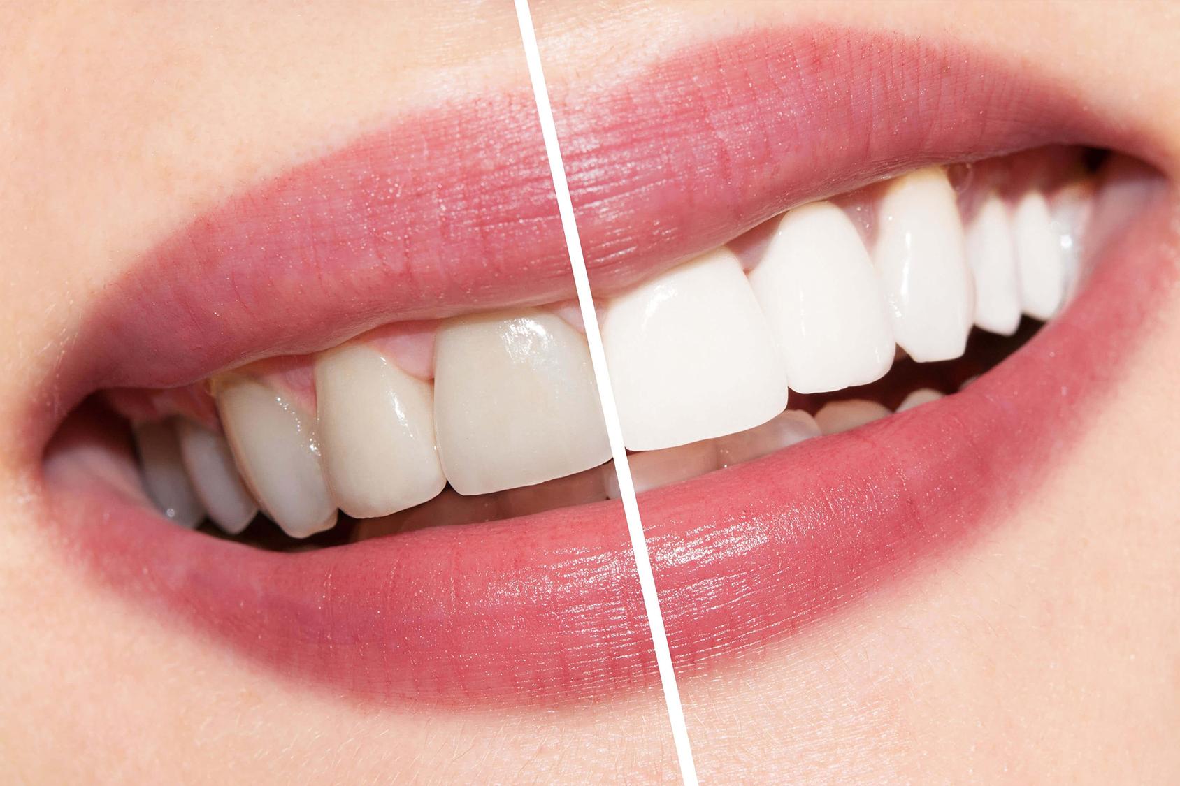 I denti diventano bianchi solo dal dentista