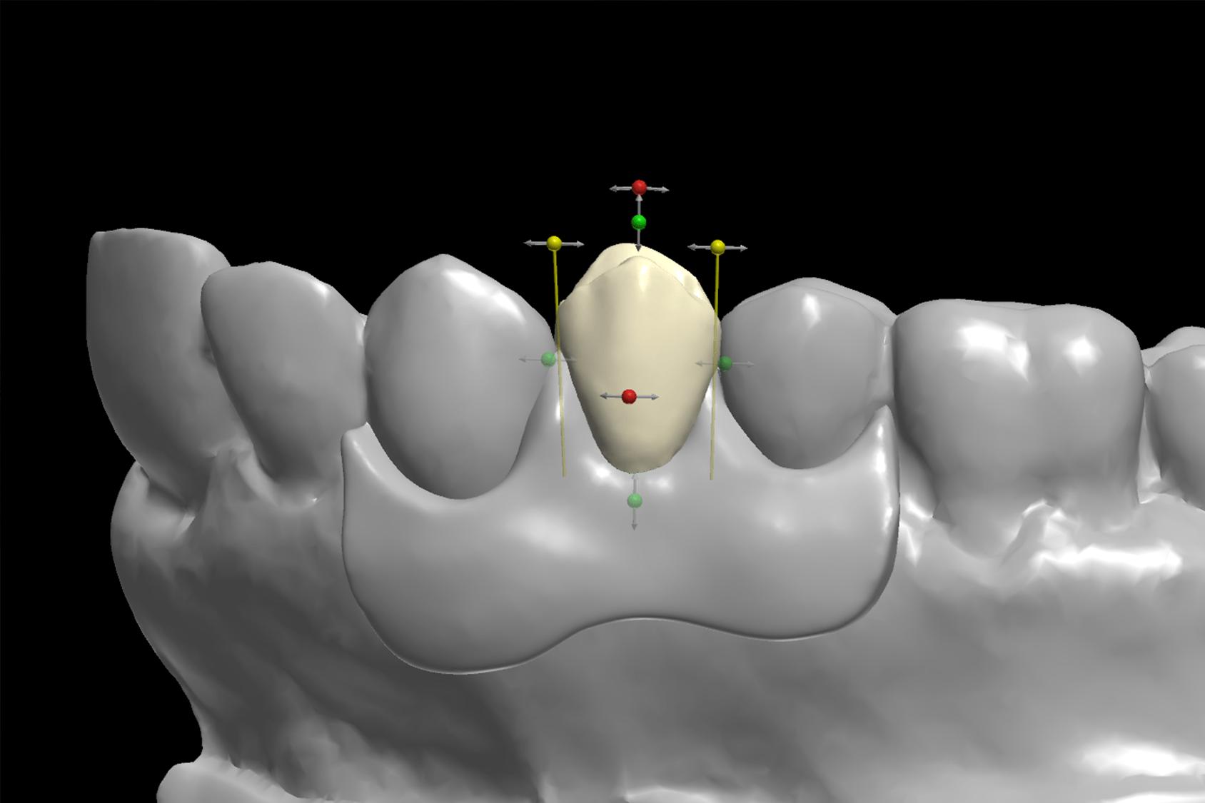 Denti stampati in 3D